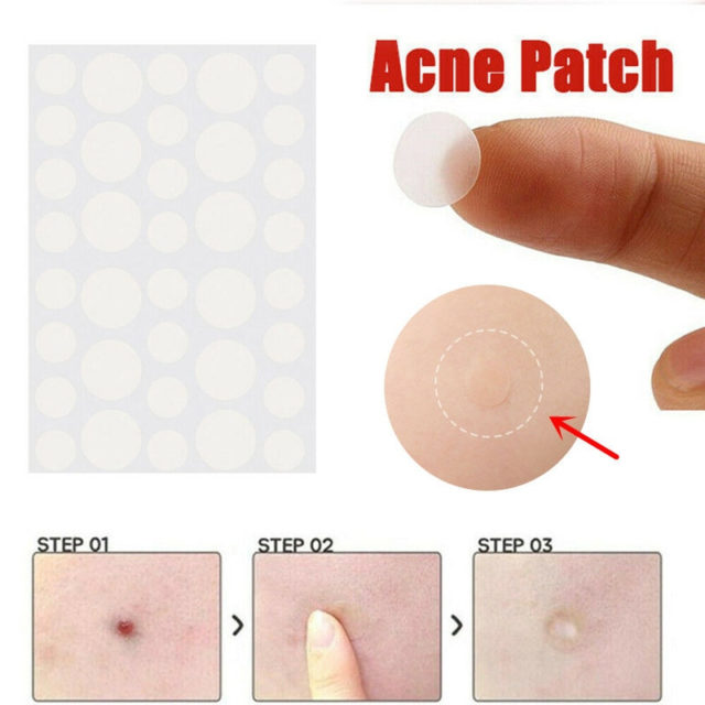 Skin Tag And Acne Patch